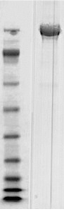 - Clostridium difficile Toxin B protein (ab124001)