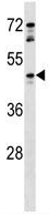 Western blot - Anti-GPCR GPR81 antibody (ab124010)