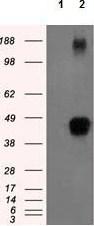 Western blot - Anti-Tristetraprolin antibody [8B5] (ab124024)