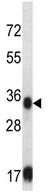 Western blot - Anti-Sorbitol Dehydrogenase antibody (ab124078)
