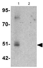 Western blot - Anti-FOXD4L1 antibody (ab124154)