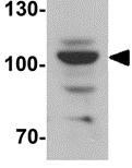 Western blot - Anti-Epac1 antibody (ab124162)