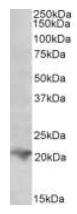 Western blot - Anti-RAC2 antibody (HRP) (ab124168)