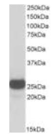 Western blot - Anti-Triosephosphate isomerase antibody (HRP) (ab124174)