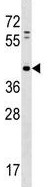 Western blot - Anti-PAP2D antibody (ab124177)
