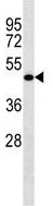 Western blot - Anti-LRRC26 antibody (ab124181)