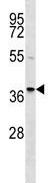 Western blot - Anti-RALY antibody (ab124188)