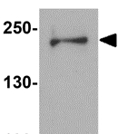 Western blot - Anti-Dispatched antibody (ab124192)
