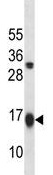 Western blot - Anti-GABARAPL2 antibody (ab124193)