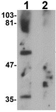 Western blot - Anti-PPHLN1 antibody (ab124197)