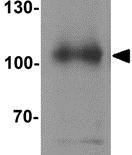 Western blot - Anti-SIPA1 antibody (ab124202)