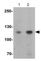 Western blot - Anti-VARP antibody (ab124203)