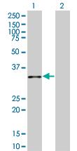 Western blot - Anti-Annexin A10 antibody (ab124217)