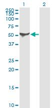 Western blot - Anti-ALDH1A1 antibody [1G6] (ab124236)