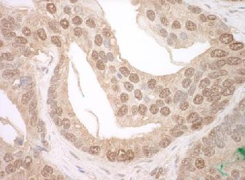 Immunohistochemistry (Formalin/PFA-fixed paraffin-embedded sections) - Anti-TFIP11 antibody (ab124244)