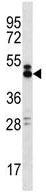 Western blot - Anti-LY108 antibody (ab124255)