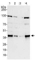 Western blot - Anti-KCTD12 antibody (ab124260)