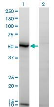 Western blot - Anti-ASAH1 antibody [1A7] (ab124262)