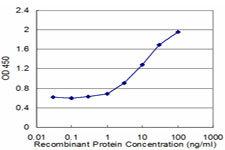 ELISA - Anti-ASAH1 antibody [1A7] (ab124262)