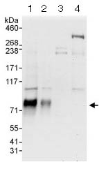 Western blot - Anti-RUNX1T1 / ETO antibody (ab124269)