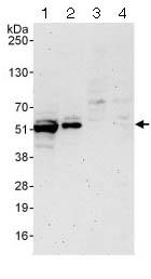 Western blot - Anti-ETS1 antibody (ab124282)