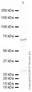 Western blot - Anti-MMP2 antibody (ab124294)