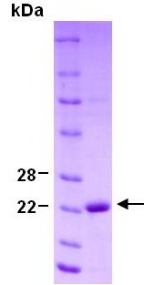 SDS-PAGE - PARK7/DJ1 protein (ab124312)