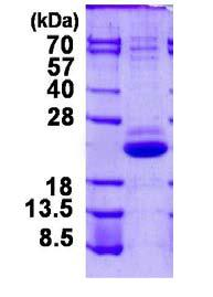 SDS-PAGE - VPS25 protein (His tag) (ab124321)