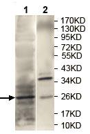 Western blot - Anti-RAB27A antibody (ab124325)