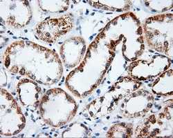 Immunohistochemistry (Formalin/PFA-fixed paraffin-embedded sections) - Anti-Pleckstrin antibody [6B5] (ab124326)