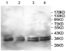 Western blot - Anti-KCTD17 antibody (ab124349)