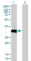 Western blot - Anti-Ctip1 antibody [3D9] (ab124352)