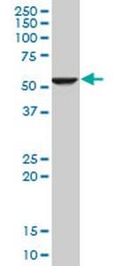 Western blot - Anti-FADS1 antibody [2D9] (ab124363)