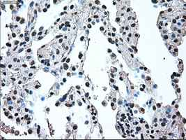 Immunohistochemistry (Formalin/PFA-fixed paraffin-embedded sections) - Anti-IRF3 antibody [5D2] (ab124399)