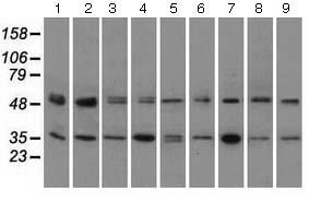Western blot - Anti-PKA R2 antibody [5F1] (ab124400)