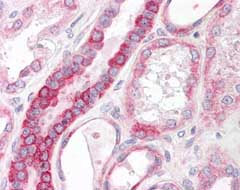 Immunohistochemistry (Formalin/PFA-fixed paraffin-embedded sections) - Anti-CD75 antibody (ab124407)