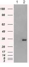 Western blot - Anti-CD32 antibody [9C6] (ab124408)