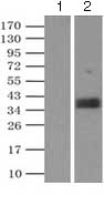 Immunoprecipitation - Anti-CD32 antibody [9C6] (ab124408)