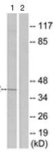 Western blot - Anti-Prostaglandin E Receptor EP2 antibody (ab124419)