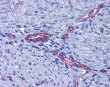 Immunohistochemistry (Formalin/PFA-fixed paraffin-embedded sections) - Anti-Prostaglandin E Receptor EP2 antibody (ab124419)