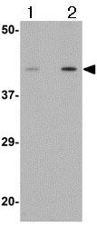 Western blot - Anti-Angiotensin II Type 1 Receptor antibody (ab124505)