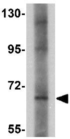 Western blot - Anti-PROSAPIP1 antibody (ab124507)