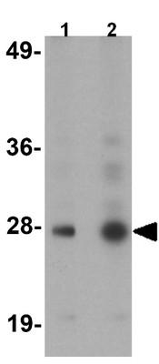 Western blot - Anti-Gemin 2 antibody (ab124511)