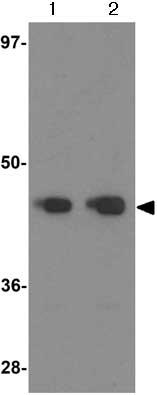 Western blot - Anti-DPF2 antibody (ab124514)