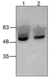 Western blot - Anti-TCTN2 antibody (ab124518)