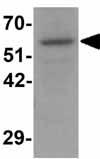 Western blot - Anti-OGFOD1 antibody (ab124540)