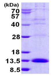 SDS-PAGE - LSM2 protein (His tag) (ab124544)