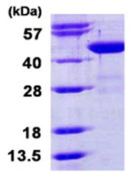 SDS-PAGE - BCAT1 protein (His tag) (ab124556)