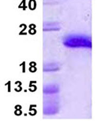 SDS-PAGE - ARMET protein (His tag) (ab124557)