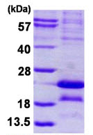 SDS-PAGE - MAGEA5 protein (His tag) (ab124572)
